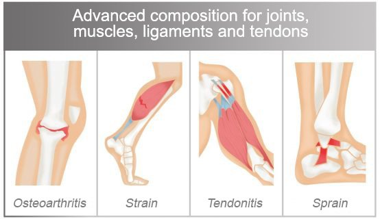 Advanced composition for joints, muscles, ligaments and tendons